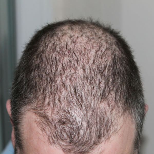 SOLID STEPS THAT WILL EFFECTIVELY COUNTER YOUR HAIR LOSS PROBLEM