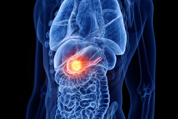 ALGARVIAN PATIENT WITH 'INOPERABLE' PANCREATIC CANCER HAS SUCCESSFUL SURGERY